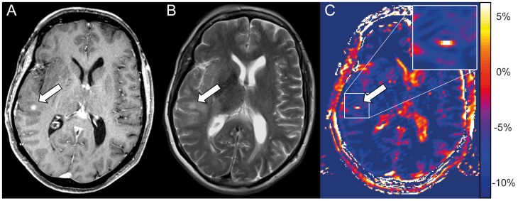 Tumor satellite lesion displays hyperintense on NOE mediated CEST. Tumor satellite of a glioblastoma subcortical temporal right in a 67 year old woman. The satellite presents a clear enhancement on CE-T1 (arrow in A) and barely displays on the T2-weighted image (arrow in B). In contrast, the satellite displays clearly hyperintense on CEST based on MTR asym (C) and matches with the area of contrast enhancement on the CE-T1 image (A). Furthermore also CSF in lateral ventricles and cerebral sulci displays hyperintense on MTR asym .