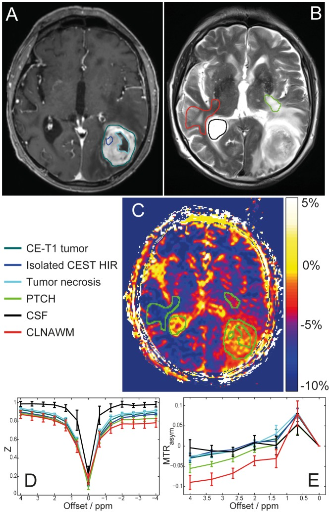 Regions of interest (ROI) selection for spectral analysis and MTR asym quantification. Left occipital glioblastoma of a 79 year old patient, CE-T1 (A) and T2-weighted images (B) with color coded ROIs: CE-T1 tumor, isolated CEST HIR within CE-T1 margins, tumor necrosis, PTCH within T2 edema margins, CSF and CLNAWM. CEST contrast based on MTR asym (C): Same ROIs illustrated in green for improved visualization. Z-spectrum (D) and asymmetry analysis (E) shown. Analyses of Z-spectra reveals that a decrease of NOE upfield effects at −3.3 ppm causes the hyperintense MTR asym contrast in the tumor regions, while no clear APT peak around +3.3 ppm could be identified in any of the analyzed tissues. Even though MTR asym shows high intensities both in CSF and isolated CEST HIR within CE-T1 tumor, Z-spectrum analysis reveals that the underlying asymmetry has a different origin: no saturation transfer is apparent in CSF at ±3.3 ppm (D black line) while in tumor regions (D dark green, dark blue and light blue lines) MTR asym = 0 reflects that NOE signals (−3.3 ppm) and saturation transfer effects at the opposite side of the Z-spectrum (+3.3 ppm) are of equal size. Furthermore the width of the Z-spectrum of CSF is decreased due to the longer T2 relaxation time.