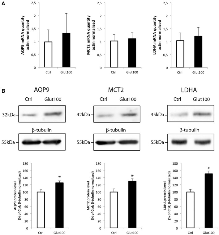 Effect of glutamate on mRNA and protein expression of AQP9, MCT2, and LDHA in cultured rat hippocampal neurons (A) Primary cultures of rat hippocampal neurons were treated with glutamate 100 μM for 1 h . Then mRNA was extracted and analyzed for AQP9, MCT2 and LDH mRNA expression using RT-PCR. Results are expressed as relative expression vs. control with mean value for control set at 1 after values had been normalized using β-actin as internal reference. Results represent mean ± SD with n = 3. The experiment was repeated three times from different cultures with similar results. Statistical analysis was performed using a non-parametric Mann–Whitney test. No significant difference was observed. (B) Primary cultures of rat hippocampal neurons were treated with glutamate 100 μM for 1 h. Then proteins were extracted and analyzed for AQP9, MCT2, and LDH protein expression using Western blot. Blot pictures were obtained with Bio-Rad Chemidoc™ XRS system (BioRad, Cressier, Switzerland) and quantified using ImageJ software. Quantitative results are expressed as percentage of control after the values had been normalized using β-tubulin signal as reference. Results represent mean ± SD with n = 3. The experiment was repeated three times from different cultures with similar results. Statistical analysis was performed using a non-parametric Mann–Whitney test. An asterisk indicates protein level significantly different from control with p