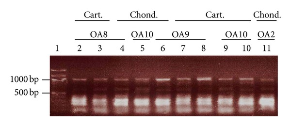 Detection of human endogenous retrovirus sequences in chondrocytes and cartilage from OA patients. Total RNA was isolated and converted into cDNA. HERV sequences were amplified using degenerated primers complementary to sequences in the pro/pol genes of HRV-5 ( Table 1 ) to obtain a ~1,000 bp fragment. Lane 1: DNA marker (in kb); lanes 2–4: OA8; lanes 4, 8, and 10: OA10; lanes 6–8: OA9; lane 11: OA2. Lanes 2, 8, and 9: RNA isolated from nitrogen-crushed cartilage; lanes 3, 7, and 10: RNA obtained from enzyme-digested cartilage; lanes 4–6 and 11: RNA purified from culture-expanded chondrocytes. PCR reactions were run on an agarose gel, stained with ethidium bromide, and the DNA was visualized under UV light. Cart.: cartilage; chond.: chondrocytes.