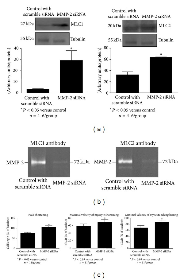 Effect of MMP-2 siRNA transfection on the level of the contractile proteins MLC1 and MLC2 (a), the formation of the complex between MMP-2 and MLC1 or MLC2 (b), and cardiomyocyte contractility (c). As a protein loading control the tubulin level was measured. Control cells were transfected with scrambled siRNA. n = 4–6 heart preparation isolations per group. n = 11 per group for contractility measurement and n = 4–6 for measurement of protein levels. * P