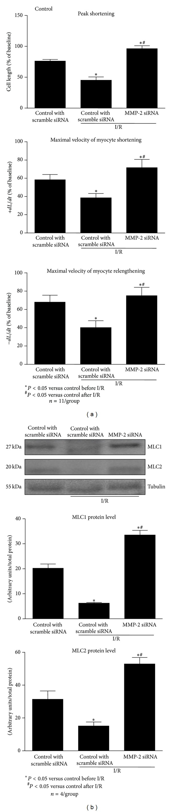 Effect of MMP-2 siRNA transfection on cardiomyocyte contractility (a) and MLC1 and MLC2 in cardiomyocytes subjected to I/R. As a protein loading control the tubulin level was measured. Control cells were transfected with scrambled siRNA. n = 11 per group for contractility measurement and n = 4 for measurement of protein levels. * P