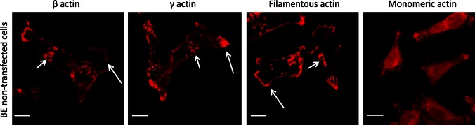Subcellular organization of β- and γ-actins as well as filamentous and monomeric actin in non-transfected BE cells. Left picture β-actin stained with mouse monoclonal antibodies directed against β-actin. Second picture γ-actin stained with mouse monoclonal antibodies directed against γ-actin. Third picture filamentous actin visualized by staining with AlexaFluor ® 568-conjugated phalloidin. Right picture monomeric actin visualized by staining with DNase I conjugated with Alexa Fluor ® 594. Long arrows show localization of actin within lamellipodia and short arrows point at invadopodia. Scale bar 20 μm