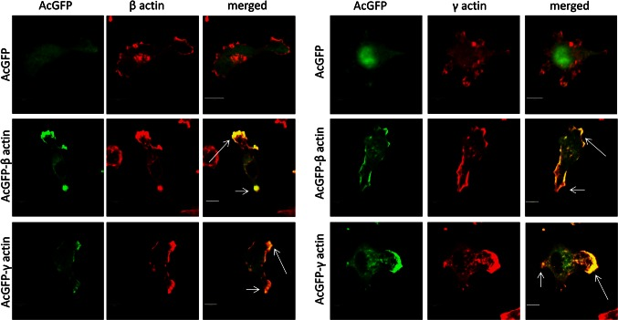 Subcellular distribution of β- ( a ) and γ-actin ( b ) in examined cells overexpressing actin isoforms. Lower rows in a and b shows representative BE cells overexpressing β- or γ-actin, respectively. Left panel AcGFP fluorescence ( green ), middle panel endogenous β- or γ-actin stained with mouse anti-β- or anti-γ-actin antibody ( red ). Merged images are shown in the right panel . Long arrows show colocalization of AcGFP-actin and endogenous actin in lamellipodia and short ones probably in retracting tail areas. Scale bar 10 μm