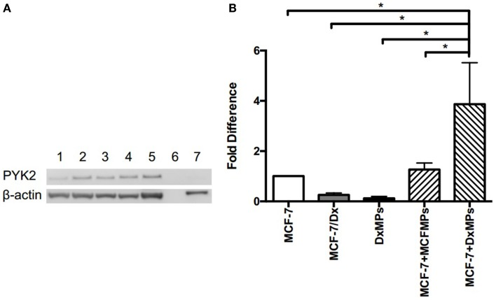 Upregulation of PYK2 protein and transcript following co-culture with DxMPs . (A) PYK2 protein expression as determined by Western blotting. Total lysates of MCF-7 cells (lane 1), MCF-7 cells co-cultured with DxMPs (lanes 2, 3, and 4), MCF-7/Dx cells (lane 5), and DxMPs (lane 7) were examined for PYK2 expression by Western blotting using the PYK2 (clone 5E2) mAb. β-actin was used as an internal control. Data was representative of at least three independent experiments. (B) Pyk2 gene transcript expression as determined by qRT-PCR. Pyk2 gene transcript in ( ): MCF-7 cells, ( ): MCF-7/Dx cells, ( ): DxMPs, ( ): MCF-7 cells co-cultured with MCFMPs, and ( ): MCF-7 cells co-cultured with DxMPs. Values are expressed as the fold difference relative to MCF-7 cells using GAPDH as the endogenous control. Data represent the mean ± SEM of at least three independent experiments. * p