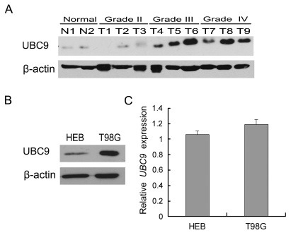 UBC9 is up-regulated in glioma cells. (A) A representative western blot showing UBC9 protein levels in two normal brain tissues (N1, N2) and nine glioma tissues (T1-T3 grade II, T4-T6 grade III and T7-T9 grade IV). β-actin was used as a loading control. (B) A representative western blot showing the UBC9 protein level in normal glial HEB cells and glioma T98G cells. β-actin was used as a loading control. (C) Real-time PCR analysis of the UBC9 mRNA level in HEB and T98G cells. RNA input was normalized to human GAPDH . The values represented the mean ± standard deviation (SD) of triplicate wells.