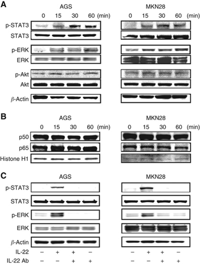 Effect of IL-22 treatment on intracellular signalling in gastric cancer cells. ( A ) Phosphorylation of STAT3, ERK and Akt in AGS and MKN28 cells treated with IL-22. ( B ) Expression of p50 and p60 in AGS and MKN28 cells treated with IL-22. AGS cells (1 × 10 6 ) and MKN28 cells (1 × 10 6 ) were cultured in 6-cm dishes, treated with IL-22 (10 ng ml −1 ) for the indicated time, and extracted protein was analysed using western blotting. ( C ) Effect of anti-IL-22 antibody on IL-22-induced STAT3 and ERK phosphorylation in AGS and MKN28 cells. AGS and MKN28 cells were pretreated with IL-22 antibody (20 μ g ml −1 ) for 45 min and then stimulated with IL-22 (10 ng ml −1 ) for 30 min.