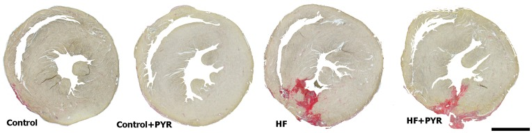 Cross sections of representative hearts, stained with picrosirius red, from control and mice with myocardial infarction (MI), treated, or not, with pyridostigmine (PYR). Bar = 1 mm.