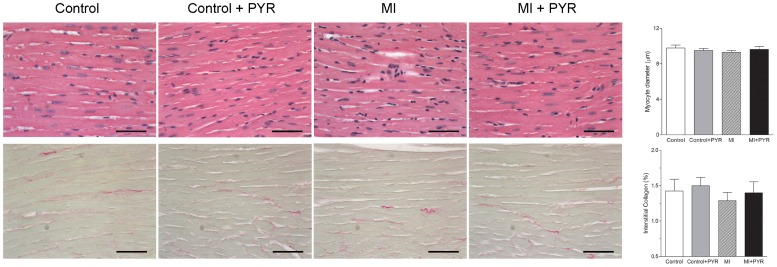 Photomicrographs and bar graphs of the minor diameter of myocytes and collagen density from the left ventricle of control and myocardial infarcted mice (MI) with or without pyridostigmine (PYR) treatment. Values are presented as the mean ± SEM. Bar = 60 µm.