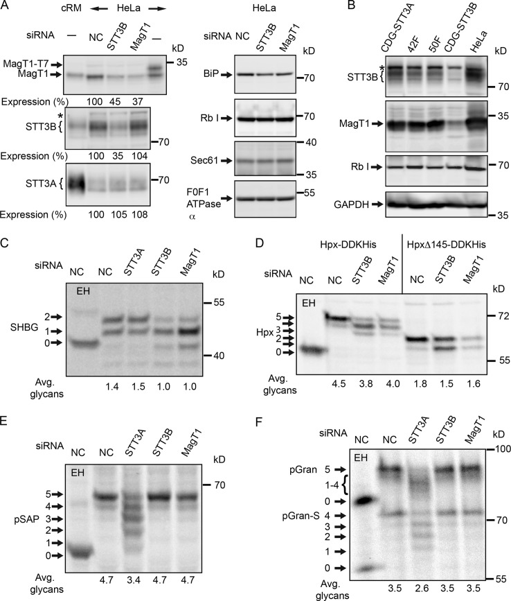 Hypoglycosylation of STT3B-dependent substrates in MagT1-depleted cells.  (A and C–F) HeLa cells were treated with NC or siRNAs specific for STT3A, STT3B, or MagT1 for 72 h. (A) HeLa cell extracts and cRM were resolved by PAGE in SDS and analyzed by protein immunoblotting using the specified antisera. MagT1-T7 expressed in HeLa cells verified recognition of MagT1 by the anti-MagT1 sera. Expression values relative to cells treated with the NC siRNA are for the displayed image, which is representative of two or more experiments. (B) Cell extracts prepared from STT3A-CDG, STT3B-CDG, and normal control (42F and 50F) fibroblasts were resolved by PAGE in SDS and analyzed by protein immunoblotting. The F0F1-ATPase α (A) and glyceraldehyde 3-phosphate dehydrogenase (GAPDH; B) served as gel loading controls. The asterisks in A and B designate a nonspecific product recognized by the anti-STT3B sera. Protein expression levels for OST subunits were normalized to the F 0 F 1 -ATPase α subunit loading control and are expressed relative to the NC siRNA lane. (C–F) After 48 h of siRNA treatment, cells were transfected with expression vectors for SHBG (C), or Hpx (Hpx-DDKHis or HpxΔ145-DDKHis; D) and pulse-chase labeled (4 min pulse, 20 min chase) after an additional 24 h. (E and F) After 72 h of siRNA treatment, cells were pulse labeled for 4 min and chased for 10 min. As indicated, samples were digested with EH after immunoprecipitation with anti-SHBG (C), anti-DDK (D), anti-SapD (E), or anti-granulin (F). Glycoforms resolved by PAGE in SDS are labeled to indicate the number of N-linked glycans. EH-digested proteins migrate slightly slower than the nonglycosylated protein because of the presence of a single residual GlcNAc residue at each site. Quantified values below gel lanes (C–F) are for the displayed image, which is representative of two or more experiments.