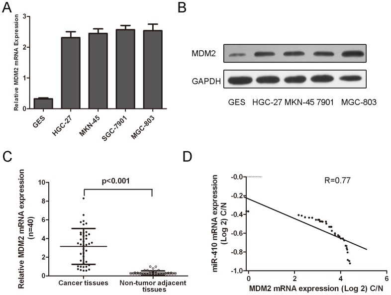 miR-410 negatively regulated MDM2 gene expression. (A) The relative MDM2 mRNA expression levels were determined by qRT-PCR in four cell lines derived from gastric cancer and one nonmalignant gastric cell line (GES). The expression of MDM2 was normalized to GAPDH. (B) Western blot analysis of MDM2 expression in four cell lines derived from gastric cancer and one nonmalignant gastric cell line (GES). GAPDH was also detected as a loading control. (C) qRT-PCR analysis of MDM2 expression in 40 pairs gastric cancer tissues and their corresponding adjacent normal tissues. The expression of MDM2 was normalized to GAPDH. The expression of MDM2 in gastric cancer tissues was significant higher than in the corresponding adjacent normal tissues. (D) Analysis of correlation of miR-410 and MDM2 expression in gastric cancer tissues. *p