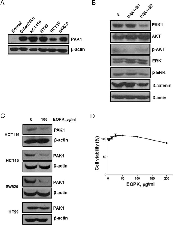 PAK1 mediates MEK/ERK, PI3K/AKT, and Wnt/β-catenin in colon cancer cells. (A) Basal levels of PAK1 expression in colorectal cancer cell lines (human and murine) and normal colon cells extracted from mouse tissue were determined by Western blotting. (B) HCT116 cells were transfected with PAK1-siRNA1, PAK1-siRNA2, or control siRNA for 48 h. Cell lysates were prepared and subjected to Western blotting to determine the expression of PAK1, p-PAK1, AKT, p-AKT, ERK, p-ERK, β-catenin and β-actin. (C) Various human colorectal cancer cells were treated with EOPK (100 μg/ml) for 24 h. (D) Cytotoxicity of EOPK was analyzed by MTT assay in NIH-3 T3 cells as a normal cell control.