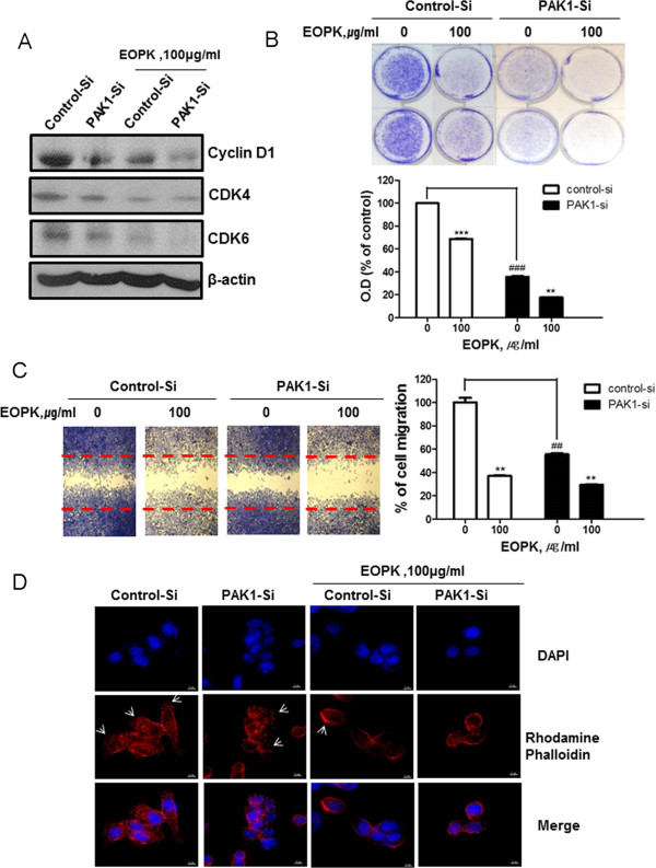 PAK1 siRNA enhances the inhibitory effect of EOPK on the cell proliferation and migration. (A) HCT116 cells were transfected with PAK1-siRNA for 48 h and were incubated in the presence or absence of EOPK (100 μg/ml) for 24 h. Cell lysates were prepared and subjected to Western blotting to determine the expression of Cyclin D1, CDK4, CDK6 and β-actin. (B) HCT116 cells were transfected with PAK1-siRNA for 24 h and treated with EOPK (100 μg/ml) for 5 days. The cells were resolved in 70% ethanol after washing with distilled water, and crystal violet absorbance was read using a microplate reader. Data represent mean ± SD of three independent experiments. * p