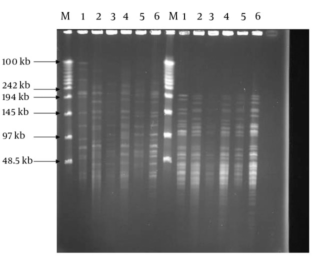 PFGE Genomic Patterns After Digestion With DraI and XbaI Restriction Enzymes M. DNA weight marker, 1. BCG; 2. M. tuberculosis H37Rv; 3-6 clinical isolates: DraI digests (left); XbaI digests (right)
