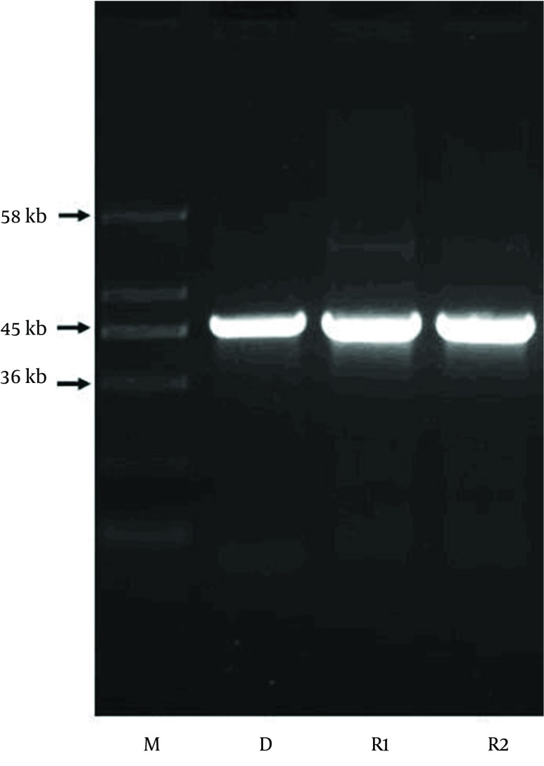 Resistance Plasmid Pattern Lane M, molecular size marker; lane D, plasmid fragment of E. coli CP9 as a donor; lane R1 and R2, trans conjugants of E. coli DH5α obtained using E. coli CP9 as a donor.