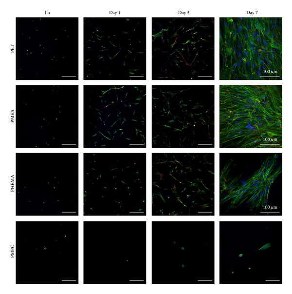 CLSM images of PDL cells cultured on polymer surfaces. Scale bars: 300 μ m. Blue: nucleus, green: actin, and red: vinculin. Time points are 1 h, 1 day, 3 days, and 7 days. Polymers: PET, PMEA, PHEMA, and PMPC.