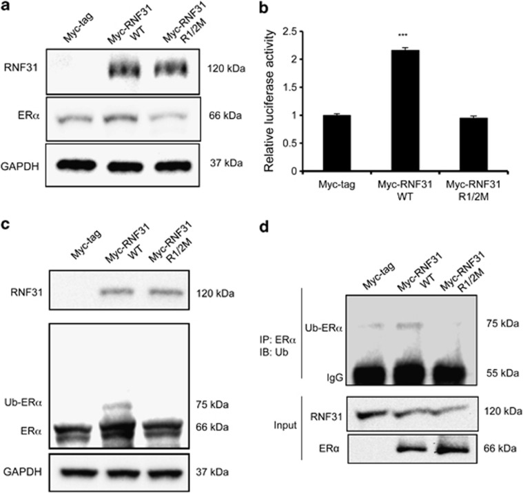 The ubiquitin ligase activity of RNF31 is required for ERα stabilization, signaling and mono-ubiquitination. ( a ) The mono-ubiquitination function of RNF31 is required for the RNF31-mediated increase of endogenous ERα protein levels. MCF-7 cells were transfected with plasmids expressing Myc-tagged RNF31, Myc-tagged RNF31 R1/2M, in which cysteine residues responsible for the transfer of ubiquitin to substrates have been mutated or the Myc-tag alone, as indicated. Forty-eight hours after transfection, whole-cell extracts were prepared and levels of ERα protein assayed by western blot analysis. The predicted molecular weights of RNF31 variants, ERα and the loading control GAPDH are indicated. ( b ) The mono-ubiquitination function of RNF31 is required to increase ERα signaling. MCF-7 cells were transfected with plasmids expressing Myc-tagged RNF31, Myc-tagged RNF31 R1/2M or the Myc-tag alone, as indicated, along with an ERE-luciferase reporter plasmid. Luciferase activity was measured 48 h after transfection and calculated from experiments performed in triplicates. Data are shown as mean±s.d. ( n =3). *** P