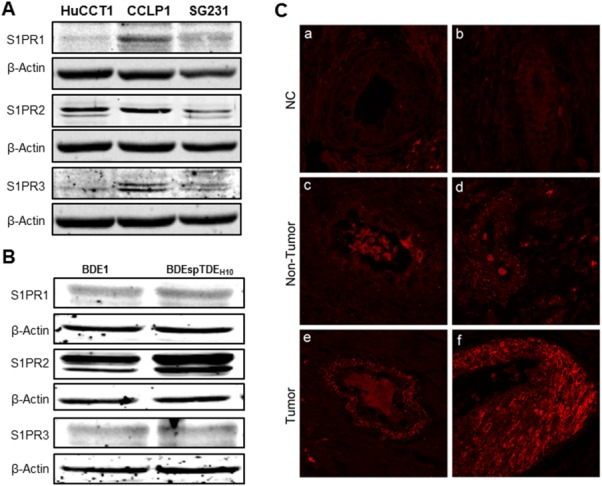 Differential expression of S1PRs in CCA cells and human CCA tissue. Total cell lysates of (A) human HuCCT1, CCLP1, and SG231 cells and (B) rat BDE1, BDEsp-TDE H10, and BDEsp-TDF E4 cells were prepared as previously described. 34 Protein levels of S1PR1, S1PR2, and S1PR3 were determined by western blotting analysis using specific Abs. β-actin was used as loading control. Representative images are shown. (C) Fluorescent IHC staining of S1PR2 in human CCA tissues. Human CCA tumor tissue and nontumor tissue from the same patient were processed for fluorescent IHC staining of S1PR2, as described in Materials and Methods. Representative images are shown. (a) Negative control (NC) without primary and second Ab. (b) NC without primary Ab. (c and d) Nontumor tissues stained with S1PR2. (e and f) Tumor tissues stained with S1PR2.