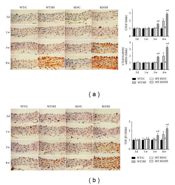 MT-KO mice exhibited earlier and more severe IH-induced aortic fibrosis. Aortic fibrosis was examined by immunohistochemical staining and qRT-PCR for the expression of CTGF (a) and immunohistochemical staining for TGF- β 1 (b), followed by semiquantitative analysis. Data were presented as means ± SDs ( n = 6); * P