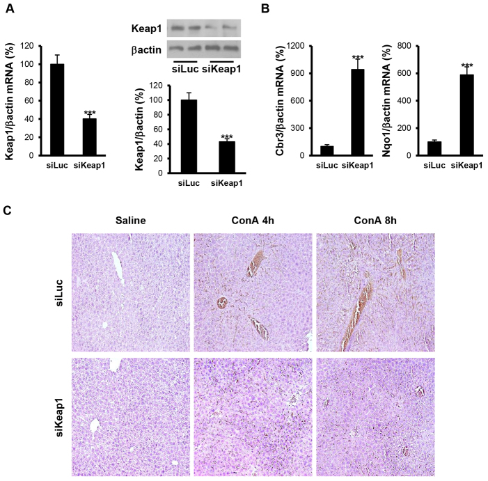 Reduction of Keap1 in the liver by siRNA administration in vivo attenuates ConA-induced liver damage. Analysis of Keap1 expression and histopathological features in liver samples from luciferase siRNA (siLuc) or Keap1 siRNA (siKeap1) mice after 4 and 8 hours of ConA treatment ( n =4–6 animals per condition). (A) (left panel) Keap1 mRNA levels determined by real-time PCR. (Right panel) Representative blots with the indicated antibodies and quantification of the densitometric analysis from all blots. Data are presented as mean±s.e.m. relative to siLuc mice. (B) Cbr3 and Nqo1 mRNA levels determined by real-time PCR. Data are presented as mean±s.e.m. relative to siLuc mice. (C) Representative images from hematoxylin and eosin staining. *** P