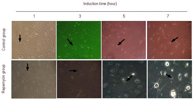 Identification of morphological changes in differentiated adult adipose-derived stromal cells in control and rapamycin groups after 5 mM β-mercaptoethanol induction, using inverted phase contrast microscopy (× 100). One hour after induction, axon-like processes were visible (arrows). Three hours after induction, cells showed neuronal-like changes (arrows). At 5 and 8 hours after induction, cells exhibited typical neuronal morphologies. Arrows indicate axon- and dendrite-like structures. In the rapamycin group, cell body enhanced refraction was observed.
