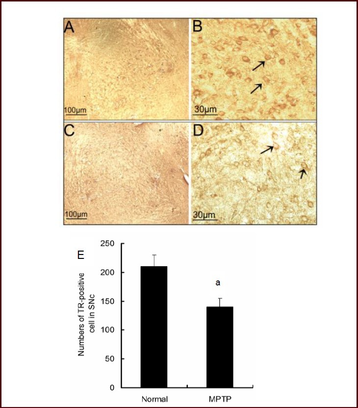 Effect of 1-methyl-4-phenyl-1,2,3,6-tetrahydropyridine (MPTP) intraperitoneal injection on the number of thioredoxin reductase 1 (TR1)-positive cells in the substantia nigra pars compacta (SNc) of mice. (A–D) Dopaminergic neurons stained for TR1 are shown in the representative images. Scale bars: Normal group: A, × 100; B, × 400. MPTP group: C, × 100; D, × 400. Positive TR1 expression is visible as brown yellow staining (arrows). (E) The number of TR1-positive cells was reduced in the MPTP group compared with the normal group. Data are expressed as mean ± SEM, and there were six mice in each group. a P