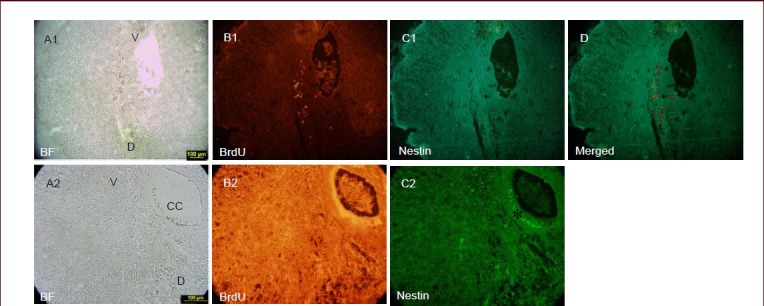 <t>Nestin</t> expression around the central canal. In the cystic spinal cord (A1), 5-bromo-2'-deoxyuridine (BrdU)-labeled cells are seen in the lesion site (B1). The images (C1, D) did not show immunoreactivity for nestin 3 weeks after transplantation. Nestin expression was restricted to ependymal cell layer (star) (C2). In the same region, labeled cells were not observed around the central canal (B2). Magnification at 10 × for A1, B1, C1, D and at 40 × for A2, B2, C2. V: Ventral; D: dorsal; CC: central canal; BF: bright field.