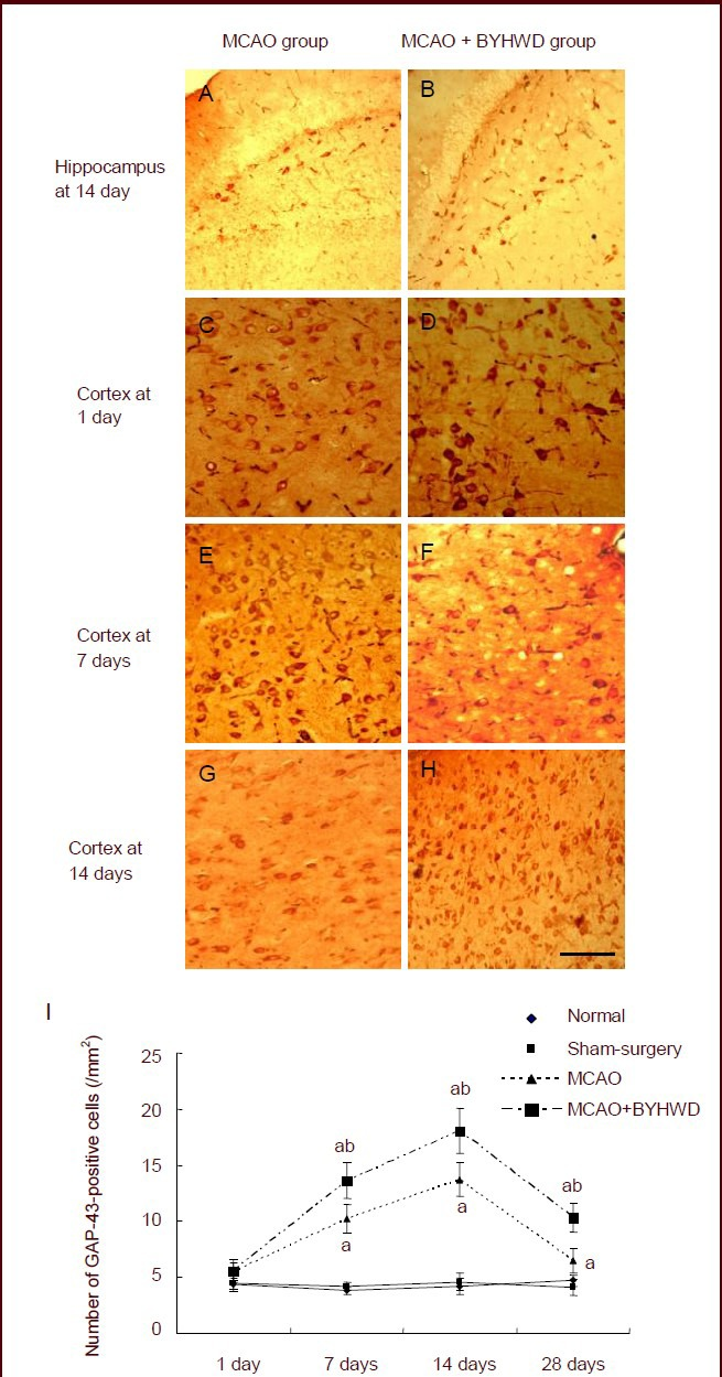 Effects of Buyang Huanwu Decoction (BYHWD) on expression of growth associated protein-43 <t>(GAP-43)</t> in the cerebral cortex of rats with cerebral ischemia. (A–H) Immunohistochemical staining of GAP-43-positive cells in the cerebral cortex at 1, 7 and 14 days after cerebral ischemia in the middle cerebral artery occlusion (MCAO; C, E, G) and MCAO + BYHWD groups (D, F, H) and in the hippocampus at 14 days after cerebral ischemia in the MCAO (A) and MCAO + BYHWD groups (B) (counterstained with 3-amino-9-ethylcarbazole, × 400; scale bars: 25 μm). (I) Quantification of GAP-43-positive cell expression in the cerebral cortex. a P