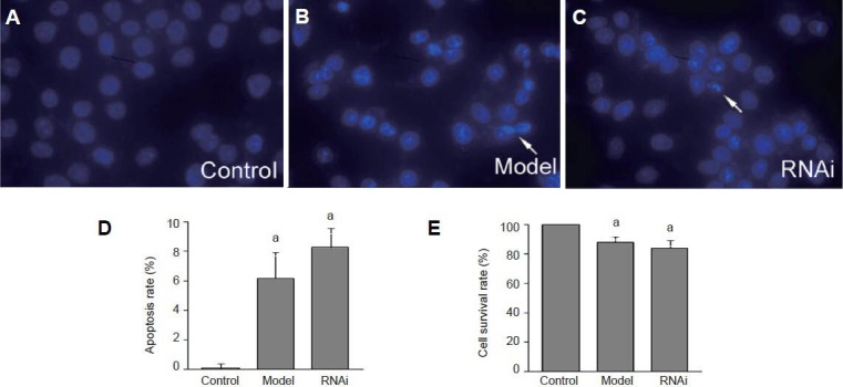 Effect of RNA interference (RNAi) on apoptosis and survival rate of Parkinson's disease model cells. (A–C) Morphological changes to apoptotic cells that appeared in model and RNAi groups were detected by Hoechst 33258 staining (fluorescence inverted microscope, ×400); apoptotic cells were stained as blue. (D) Apoptosis rate was detected by flow cytometry. (E) Cell survival rate was de-tected by MTT assay. The rate of apoptosis and survival rate in Parkinson's disease cells in the model group was not significantly different from that in the RNAi group. Data are expressed as mean ± SD and were analyzed using analysis of variance. a P