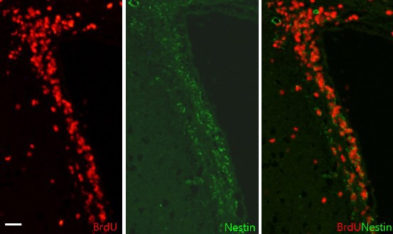 Immunohistochemistry for BrdU and nestin co-labeling after focal cerebral ischemia. Many ependymal lining cells were co-localized with nestin in the sub-ventricular zone among the BrdU-labeled cells in the subventricular zone 7 days after focal cerebral ischemia. Red: BrdU; green: nestin. Scale bar: 50 μm. BrdU: 5-Bromo-2′-deoxyuridine.
