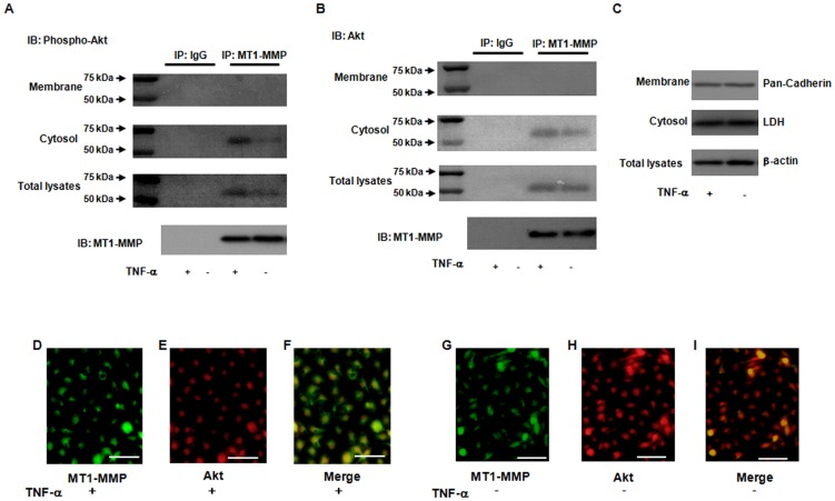 Enhancement of molecular interaction of MT1-MMP and Akt in response to TNF-α. ( A and B ) Formation of a complex of MT1-MMP and phosphorylated Akt as determined by immunoprecipitation. The bands of 60 kDa phospho- and total- Akt were detected in the MT1-MMP-associated immunoprecipitates. Immunoblotting shows that phospho- and total- Akt in membrane and cytosol fractions of ECs was detected in the MT1-MMP-immunoprecipitates in TNF-α stimulation, whereas little or no expression was detected by normal mouse IgG as a negative control antibody. ( C ) Markers for membrane fraction, cytosol and total lysates were determined by Western blotting. Pan-Cadherin and LDH indicate protein markers of membrane fraction, cytosol fraction and total lysates and β-actin, respectively. ( D–I ) Association of MT1-MMP and Akt according to fluorescent immunohistochemistry. ECs treated with or without TNF-α were reacted with the antibodies to phospho-Akt and MT1-MMP, and the stained cells were analyzed by fluorescence microscope. Merged image indicates that MT1-MMP is colocalized with Akt in TNF-α-stimulated ECs. Photomicrographs are from an experiment representative of 4 independent experiments. Scale bars indicate 50 µm (lens x20).