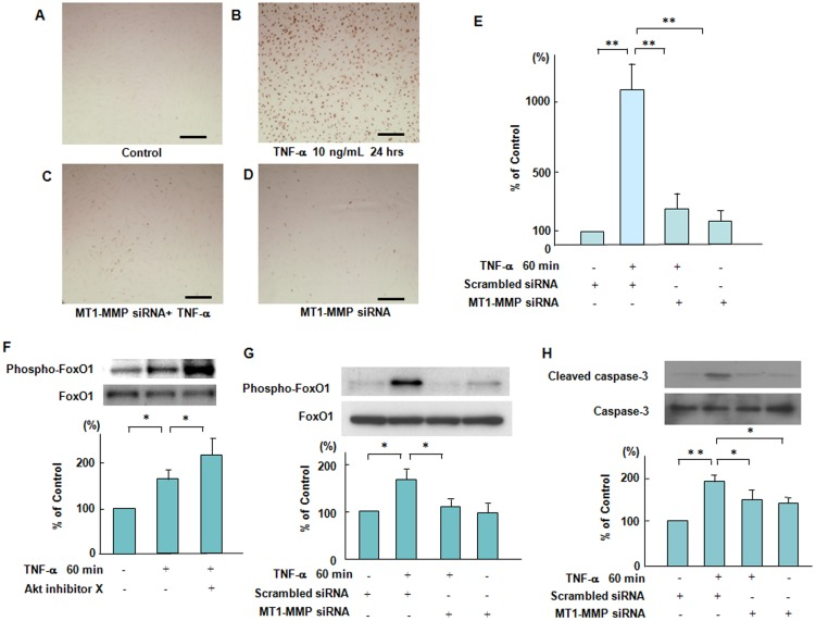 Suppressive effects of MT1-MMP siRNA on TNF-α-induced endothelial apoptosis mediated via the phosphorylation of FoxO1. ( A–D ) Effect of knockdown of MT1-MMP by siRNA on TNF-α-induced endothelial cell apoptosis. ECs were incubated with or without TNF-α for 24 hours. Cell apoptosis was determined by TUNNEL staining. Photomicrographs are from an experiment representative of 4 independent experiments. Scale bars indicate 50 µm (lens x10). ( E ) Quantitative image analysis of cell apoptosis was performed by ImageJ. Data are expressed as means ± SD (n = 3, each group). ** P