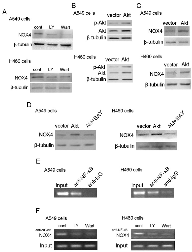 PI3K/Akt pathway regulates NOX4 expression in NSCLC cells through NF-κB NOX4 interplays with PI3K/Akt pathway to regulate NSCLC progression. (A) Western blotting analysis of NOX4 expression in A549 and H460 cells treated with 30 μM LY294002 or 10 μM Wortmannin and control solvent for 24 hour. (B) Overexpression of Akt in A549 and H460 cells. Akt activity was represented as the levels of phosphorylated forms of Akt evaluated by western blotting. (C) NOX4 expression was evaluated in Akt overexpressing A549 and H460 cells using western blotting. (D) Western blotting analysis of NOX4 expression in AKT-overexpressing A549 and H460 cells after treated with 10 μM NF-κB inhibitor (Bay11-7082). (E) The ChIP assay was performed using the chromatin prepared from A549 and H460 cells. IgG served as the negative control. (F) 30 μM LY294002 and 10 μM Wortmannin inhibited the direct binding of NF-κB to the promoter region of NOX4 and NOX4 expression measured by ChIP assay in A549 and H460 cells.