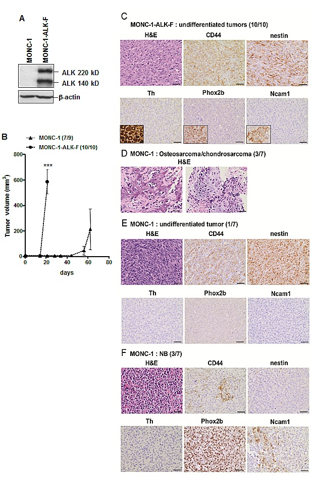 ALK-F1174L impairs differentiation of MONC-1-derived tumors A. Whole cell extract of MONC-1 parental cells and MONC-1-ALK-F1174L transduced cells were analyzed by immunoblotting for the presence of human ALK. β-actin was used as loading control. B. Tumor take (number of tumor-bearing mice /total nude mice) and growth (mean tumor volumes ± SEM) of MONC-1 and MONC-1-ALK-F cells orthotopically implanted and measured by echography (unpaired t test with Welch's correction, ***=p