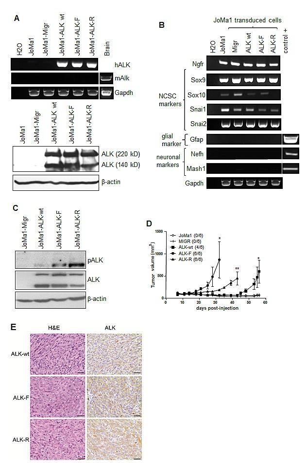 ALK-wt-, ALK-F1174L-, and ALK-R1275Q-expressing JoMa1 cells are tumorigenic in subcutaneous in vivo model A. Analyses of ALK mRNA and protein expressions in parental JoMa1 cells and in JoMa1 cells transduced with the empty vector (Migr) or vector encoding for ALF-wt, ALK-F1174L or ALK-R1275Q. Murine GAPDH and β-actin were used as control for RT-PCR (top) or immunoblotting (bottom), respectively. B. Expression levels of various NCSC and differentiation markers analyzed by RT-PCR in total RNA from JoMa1 parental and transduced cells. C. Immunoblotting analysis of ALK phosphorylation in transduced JoMa1 cells. β-actin was used as loading control. D. Tumor take (number of tumors/total implanted mouse flanks) and growth (mean tumor volumes ± SEM) of JoMa1 parental and transduced cells implanted subcutaneously in both flanks of nude mice are represented (one way Anova *=p