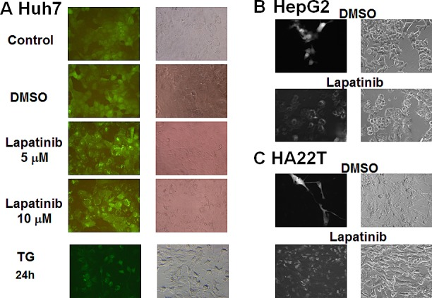 Induction of LC3 aggregations by lapatinib in HCC cells The stable expression of GFP-LC3 in HCC cells was prepared by the transduction of a GFP-LC3-containing lentivirus. After DMSO, 5 or 10 μM lapatinib or 150 nM thapsigargin (TG, positive control) treatment for 3 days; Huh7 (A), HepG2 (B), or HA22T (C) cells were observed by fluorescence microscopy.