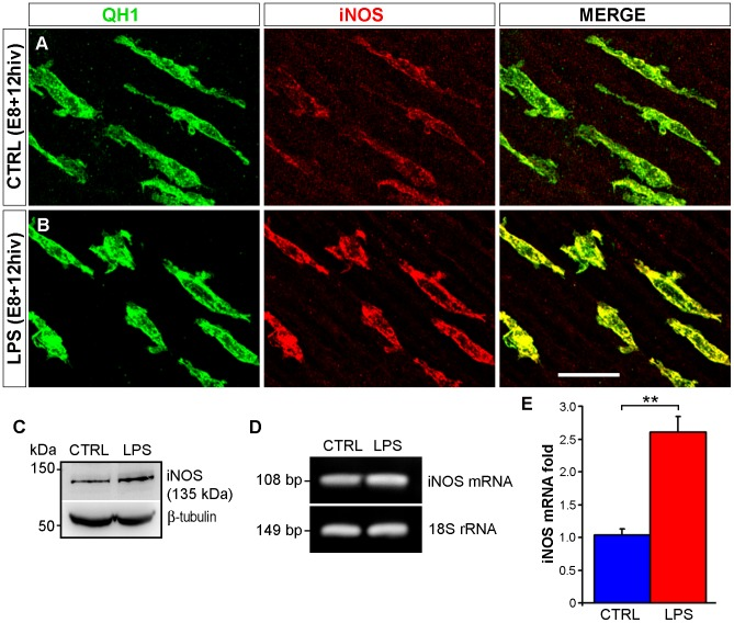 iNOS gene expression is upregulated in LPS-treated quail embryo retina explants cultured for 12 hrs in vitro (hiv). A , B . Confocal images of QH1 (green) and anti-iNOS (red) double immunostained microglial cells in non-treated control (CTRL, A ) and LPS-treated (LPS, B ) retina explants from quail embryos at 8 days of incubation cultured for 12 hiv (E8+12hiv). The iNOS labeling is higher in LPS-treated versus control explants. C . Western blot analysis results, representative of three independent experiments, for iNOS protein levels in non-treated control (CTRL) and LPS-treated (LPS) E8+12hiv retina explants. The 135 kDa band, which corresponds to the iNOS protein, is noticeably more intense in LPS-treated versus control explants. β-tubulin antibody was used as a loading control. D . Representative gel of three independent experiments on agarose gel electrophoresis of iNOS mRNA, showing a more intense band in LPS-treated explants (LPS) than in control explants (CTRL). iNOS amplification products are referred to the corresponding 18S rRNA bands. E . Quantitative analysis of iNOS mRNA expression by real-time PCR. The histogram represents changes in the iNOS mRNA levels of LPS-treated E8+12hiv retina explants with respect to non-treated explants (mean ± SEM) obtained from three real-time PCR experiments. iNOS mRNA levels are more than two-fold higher in LPS-treated explants than non-treated explants. Scale bar, 25 µm.
