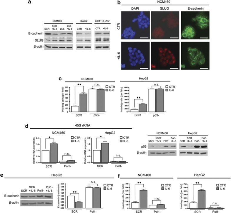 IL-6 induces EMT in a p53-dependent manner. ( a ) Representative western blot analysis of E-cadherin and SLUG expression in NCM460, HepG2 and HCT116 p53 −/− cells exposed to IL-6 for 24 h. NCM460 were either (p53 − ) or not (SCR) silenced for TP53 expression. ( b ) Visualization of SLUG and E-cadherin distribution in control and IL-6-treated NCM460 cells. Cells were labeled with monoclonal antibodies versus SLUG or E-cadherin; the antibodies were revealed by FITC-conjugated secondary antibodies. Nuclei were stained with 4',6-diamidino-2-phenylindole (DAPI). Scale bar=40 μm. ( c ) Invasion assay of control (SCR) and TP53-silenced (p53 − ) NCM460 and HepG2 cells. The cells were exposed, 48 h after the end of the silencing procedure, to IL-6 for 24 h. ( d ) Real-time–PCR evaluation of 45S rRNA and western blot analysis of p53 expression in NCM460 and HepG2 cells transfected with control sequences (SCR) and in POLR1A-silenced cells (Pol1 − ). At 48 h after the end of the silencing procedure cells were exposed to IL-6 for 24 h. ( e ) Western blot and densitometric analysis of E-cadherin expression in control (SCR) and POLR1A-silenced (Pol1 − ) HepG2 cells. At 48 h after the end of the silencing procedure the cells were exposed to IL-6 for 24 h. ( f ) Invasion assay of control (SCR) and POLR1A-silenced NCM460 and HepG2 cells. At 48 h after the end of the silencing procedure, the cells were exposed to IL-6 for 24 h. Histograms show the values (mean±s.d.) of three experiments. * P