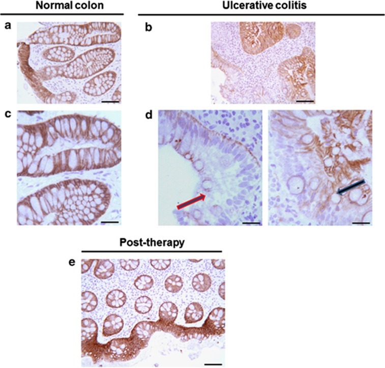 E-cadherin staining is reduced in the epithelial cells of colon mucosa in UC, and returns to normal level after anti-inflammatory therapy. Immunostaining with anti-E-cadherin antibodies, revealed by a peroxidase/DAB enzymatic reaction. In normal mucosa, all the epithelial cells of the crypts and the surface exhibited an intense staining at their boundaries (scale bars=80 μm ( a ), 20 μm ( c )). In UC mucosa, the staining intensity appeared to be strongly reduced in some zones (scale bars=80 μm ( b ), 20 μm ( d )). Arrows indicate epithelial cells with low or nil E-cadherin staining. After anti-inflammatory therapy E-cadherin immunostaining was superimposable to that of normal colon mucosa (scale bar=80 μm ( e )). Hematoxylin counterstaining.