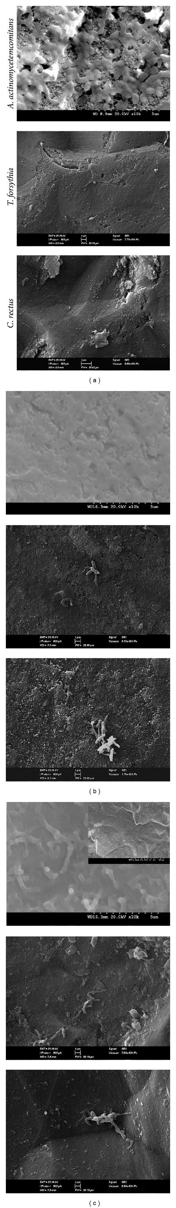 SEM micrographs after adhesion of A. actinomycetemcomitans , T. forsythia , and C. rectus on the surface of (a) Group TiO 2 : as-annealed TiO 2 nanotubes; (b) Group Ag: as-annealed Ag doped TiO 2 nanotubes; (c) Group Ti: commercially pure Ti sheet.