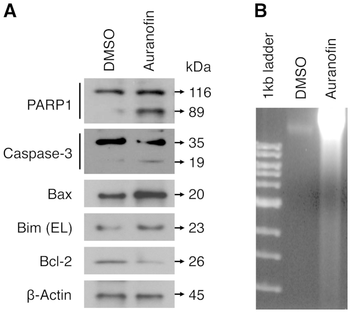Auranofin induces cellular apoptosis in SKOV3 cells. (A) SKOV3 cells were treated with auranofin (100 nM) or control (DMSO) for 48 h. Total lysates of cells were analyzed by western blot analysis with specific antibodies against apoptosis-related proteins as indicated. β-actin represents the loading controls. (B) DNA samples extracted from SKOV3 cells, which were treated with auranofin or control as described above, and subjected to DNA fragmentation assay. Equal amounts of the extracted DNA (2 μg/lane) and size markers (1-kb ladder) were subjected to electrophoresis on 2% agarose gels, which were stained with ethidium bromide and photographed.