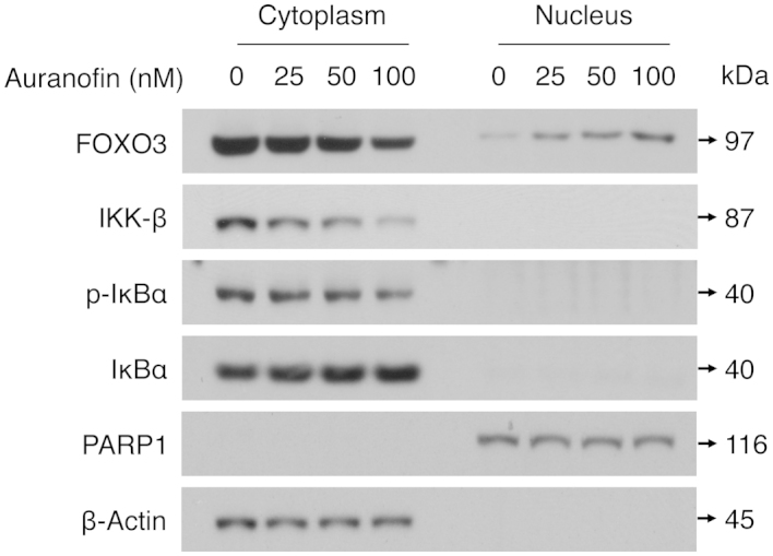 Auranofin downregulates IKK-β expression and promotes the nuclear translocation of FOXO3 protein in SKOV3 cells. SKOV3 cells were treated with auranofin (25, 50 and 100 nM) or control (0 nM) for 48 h and cytoplasmic and nuclear extracts that had been fractionated from cells were analyzed by western blot analysis with specific antibodies as indicated. β-actin and PARP1 represent the loading controls of cytoplasmic and nuclear extracts, respectively.