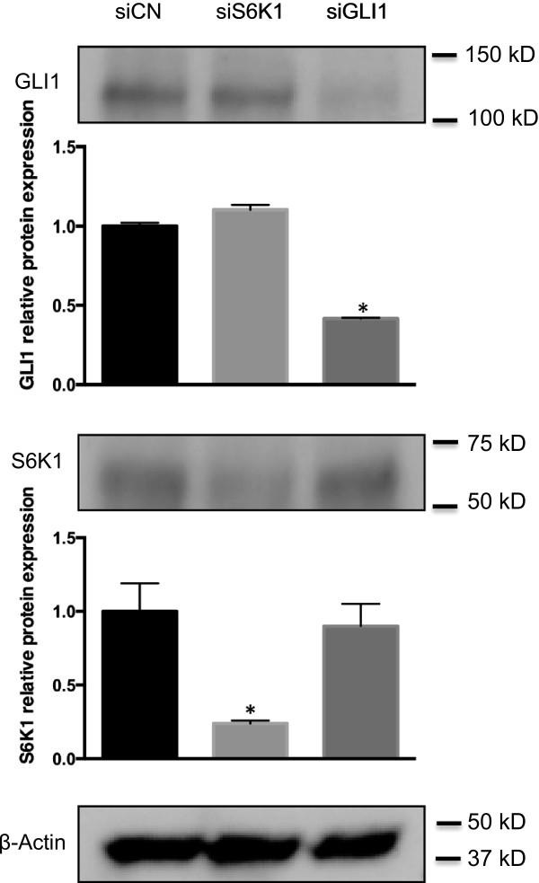 GLI1 protein levels are unchanged following <t>S6K1</t> knockdown. Western blot analysis of GLI1 and S6K1 protein expression in SK-N-AS cells, following siRNA-mediated knockdown of GLI1 and S6K1. Note the reduction of the GLI1 and S6K1 protein bands by the siRNAs targeting GLI1 (siGLI1) and S6K1 (siS6), respectively. siCN indicates the control siRNA treatment and β-Actin was used as the endogenous protein control. Quantitation of protein expression, using the ImageJ software, is shown in the bar graphs. Each bar represents the mean ± SEM of triplicate values from a representative experiment. *, Statistical significant, P