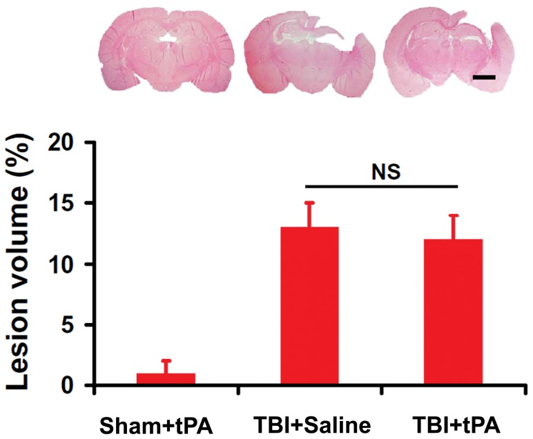 Cortical lesion volume after TBI and tPA treatment. The bar graph shows no significance (NS) in the cortical lesion volume between the TBI+Saline and TBI+tPA groups examined at 35 days post injury ( p > 0.05). Scale bar = 2 mm. Data represent mean ± SD. n = 8 (rats/group).