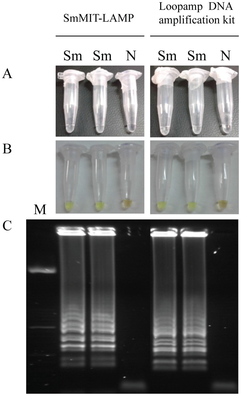 LAMP detection of S. mansoni genomic DNA samples using SmMIT-LAMP or the Loopamp DNA amplification kit at 63°C for 1 h. (A) The turbidity of the reaction mixture was inspected by the naked eye. (B) The LAMP amplification results were also visually detected by adding the fluorescent dye SYBR Green I to the reaction tubes. A successful LAMP reaction would turn to green; otherwise, it would remain orange (C) LAMP products were also monitored using 2% agarose gel electrophoresis stained with ethidium bromide. Lane M, 50 bp DNA ladder (Molecular weight marker XIII, Roche); lanes Sm: S. mansoni DNA (1 ng); lane N, negative control (no DNA template).