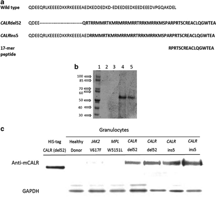 Generation and characterization of the anti-mutated CALR antibody. In panel a , the sequence of the 17-mer peptide used for generation of the anti-mutated CALR antibody is shown in relation with the amino-acid sequence of wild-type CALR and the predicted sequence of mutated CALR originated from the del52 and ins5 abnormalities. In panel b , gel electrophoresis of the mutated calreticulin prepared in BL21DE3RIPL (lanes 2 and 3) and JM109DE3 (lanes 4 and 5) E. Coli strains; only in the latter strain successful production of calreticulin was obtained. Calreticulin has a molecular weight of 47 kDa, but migrates in these conditions at an apparent higher molecular weight likely owing to a specific conformational pattern. In panel c , western blot analysis shows anti-mutated CALR antibody selectivity for mutated protein vs the wild-type form. CALR recombinant protein expressed in E. Coli was used as a positive control. GAPDH was used as a loading control.