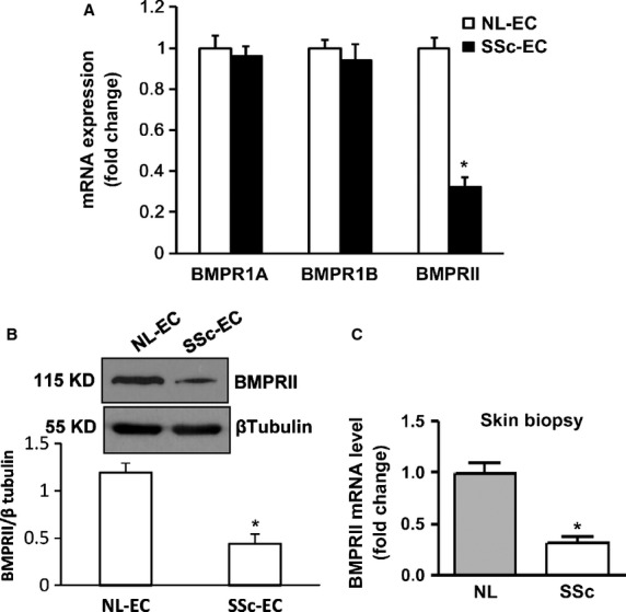 Decreased expression levels of BMPRII in systemic sclerosis (SSc) cells and skin. ( A ) mRNA expression levels of all BMPR family members (BMPR1A, BMPR1B and BMPRII) in normal-MVECs and SSc-MVECs were measured by SYBR Green real-time PCR analysis. Values are the fold increase/decrease compared with expression in the normal control group (ascribed an arbitrary value of 1). There was a significant decrease in BMPRII expression levels in SSc-MVECs * P