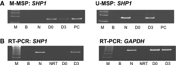 Effect of 5-AzadC treatment on K562 cells. (A) M-/U-methylation-specific polymerase chain reaction analysis of SHP1 promoter methylation status showed that 5-AzadC treatment led to progressive demethylation of SHP1 promoter in K562 cells. (M: DNA marker; B: blank; PC: positive control; N: normal control; D0, day 0; D3, day 3 culture in 5-AzadC with 0.5 μM). (B) Reverse transcription–PCR (RT-PCR) analysis of the GAPDH status and SHP1 expression after 5-AzadC treatment. (M: DNA marker; B: blank; N: normal control; NRT: negative control without reverse transcriptase; D0, day 0; D3, day 3 culture in 5-AzadC with 0.5 μM).
