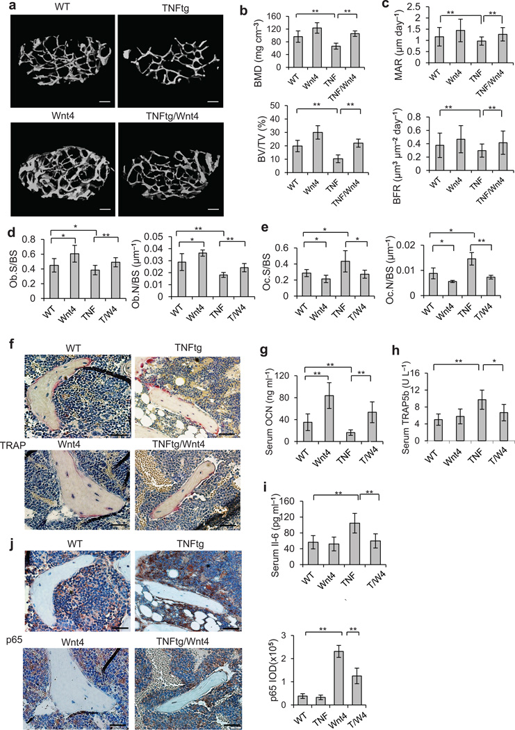Wnt4 inhibits TNF-induced bone loss and NF-κB activation. ( a,b ) µCT reconstruction ( a ), BMD and BV/TV ( b ) of distal femoral metaphysis regions from WT, Wnt4, TNFtg and TNFtg/Wnt4 mice. Scale bars, 200 µm. ( c ) Comparisons of MAR and BFR in TNFtg mice and TNFtg/Wnt4 mice. ( d,e ) Morphometric analysis of osteoblast counts ( d ) and osteoclast counts ( e ) in TNFtg mice and TNFtg/Wnt4 mice. ( f ) TRAP staining of osteoclasts surrounding trabecular bones in WT, Wnt4, TNFtg and TNFtg/Wnt4 mice. Scale bars, 40 µm. ( g–i ) ELISA of Ocn ( g ), Trap5b ( h ) and Il-6 ( i ) concentrations in serum collected from WT, Wnt4, TNFtg and TNFtg/Wnt4 mice. ( j ) Immunostaining with anti-active p65 and quantification of NF-κB activity surrounding the trabecular bone in WT, Wnt4, TNFtg and TNFtg/Wnt4 mice. Scale bars, 40µm. TNF, TNFtg mice; T/W4, TNFtg/Wnt4 mice. For b–e , and g–j , n = 6 per group for WT and WNT4 mice; n = 8 per group for TNFtg and TNFtg/Wnt mice. * P