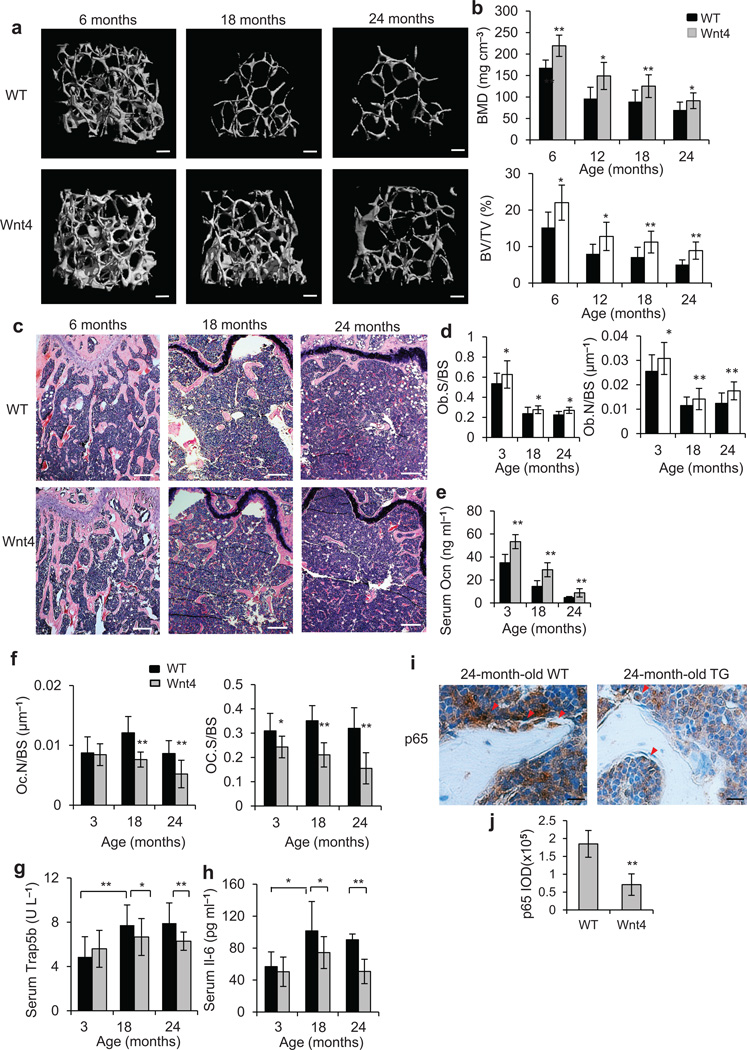 Wnt4 attenuates skeletal aging by inhibiting NF-κB. ( a–c ) µCT reconstruction ( a ), BMD and BV/TV ( b ), as well as H E staining ( c ) of distal femoral metaphysis regions from 6-, 18- and 24-months-old WT and Wnt4 mice. Scale bars, 200 µm ( a ); 300 µm ( c ). ( d ) Morphometric analysis of osteoblast counts in distal femoral metaphysis from 3-, 18- and 24-months-old WT and Wnt4 mice. ( e ) ELISA of Ocn concentrations in serum from 3-, 18- and 24-months-old WT and Wnt4 mice. ( f ) Morphometric analysis of osteoclast counts in distal femoral metaphysis from 3-, 18- and 24-months-old WT and Wnt4 mice. ( g,h ) ELISA of Trap5b ( g ) and Il-6 ( h ) concentrations in serum from 3-, 18- and 24-months-old WT and Wnt4 mice. ( i ) Immunostaining with anti-active p65 and quantification of NF-κB activity surrounding the trabecular bones from 24-months-old WT and Wnt4 mice. Scale bars, 25 µm. For b , and d–i , n = 12 mice per group. * P